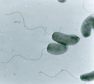 Vibrio Cholerae can form biofilms, a subject of study in Martin Schuster's lab at OSU.