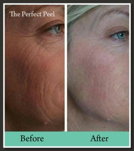 perfect peel Bexley Clinic