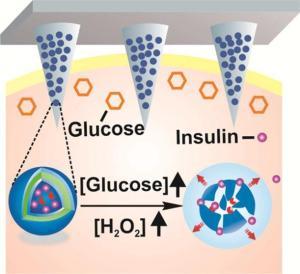 糖尿病工程如何智能贴片的照片