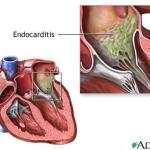 Random image: endocarditis