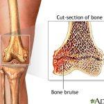Random image: knee-bone-bruise
