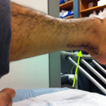 Random image: what-is-the-difference-betweem-achilles-tendonitis-and-tendinosis-david-ortiz-photo