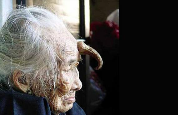 horn-woman-old-medical-conditon