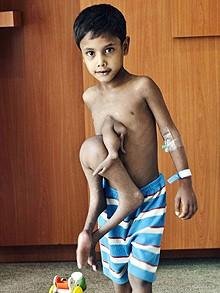 Boy with 8 arms and legs