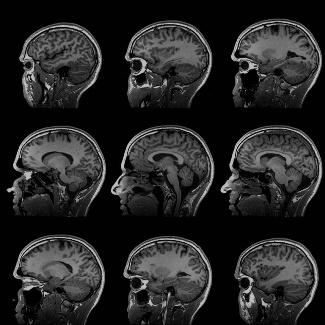 MRI Scans of Brain - morality - evolution - James Rachels - C.S. Lewis
