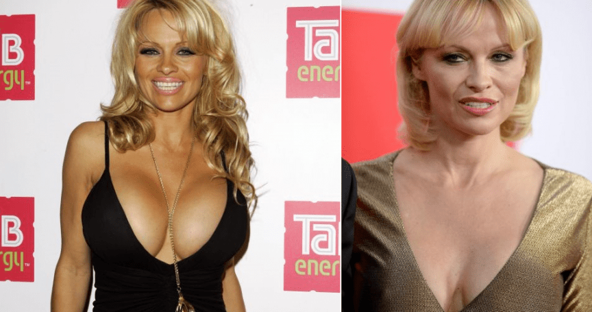 10 celebs you didn't know had breast reduction surgery – You will shocked to see this! (With Pictures)