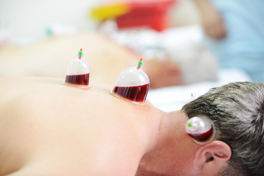 The Ancient Arab Hijama (Cupping) Popular With Rio 2016 ...
