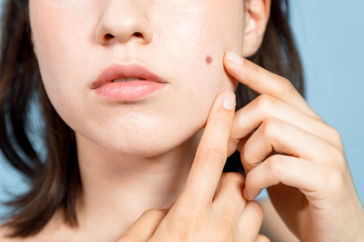 protect your skin from dryness