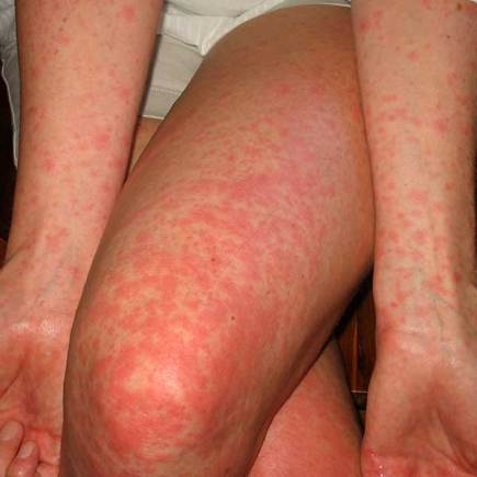 Typical Scarlet Fever rash. Photo: Scarlatina Rash Pictures