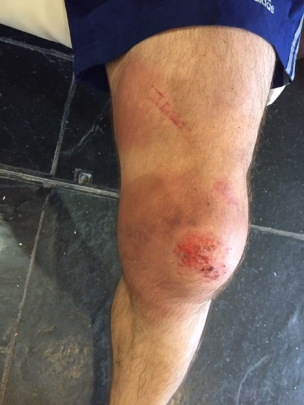Ross' swollen knee after crashing on the course.