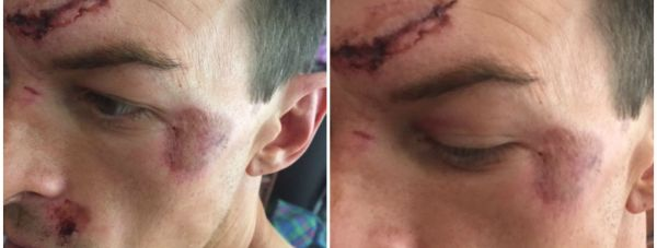 A man suffered facial injuries in the brawl outside the Lincoln pub.