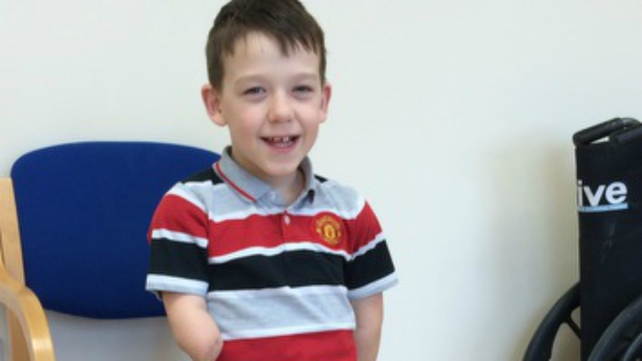 Harvey was 9 1/2 months old when he had to have his legs and one of his arms amputated due to meningitis