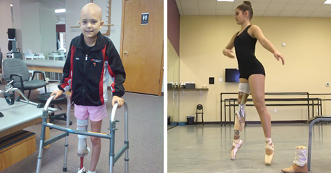 Inspiring Teen Defies Cancer and Amputation to Continue Her Passion of Dancing