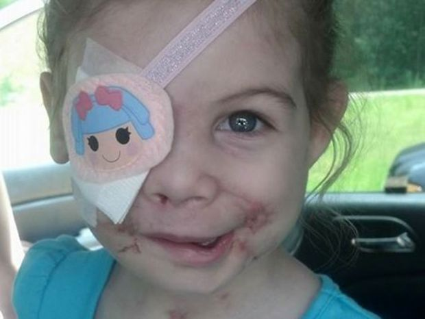 """A photo of Victoria Wilcher is posted on """"Victoria's Victories,"""" a Facebook page following her recovery from a pit bull attack in April. (Facebook)"""
