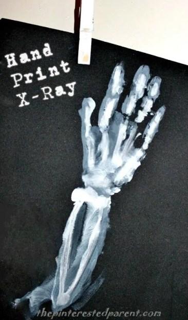 Hand print X-ray