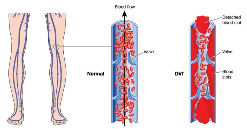 How deep vein thrombosis (DVT) happens. When the blood clot from DVT reaches the lung, that's a pulmonary embolism.
