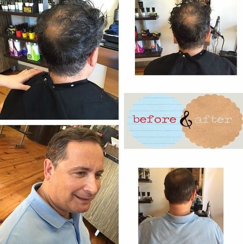Hair Cut To Cover Bald Spot On Top Of | 301 moved
