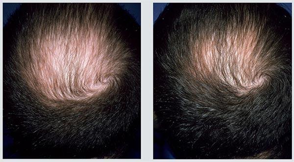 Queda de cabelo – Será que há forma de acabar com a queda excessiva Atrasar a progressão Que produtos usar Ora vejam!