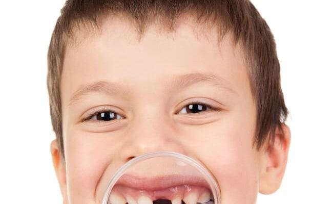Is this a thing?? My husband and I have different opinions about this (surprisingly!) -- why I don't want to save my child's baby teeth.