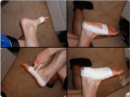 Prevention and Treatment of Plantar Fasciitis