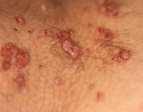 лечение кондиломы у женщин фото