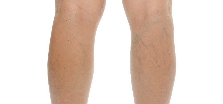 Varicose vein. Isolated