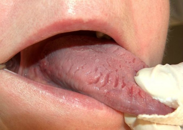 Tongue with cracks in it.