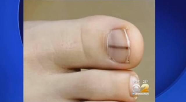 Dark stripe on toenail.