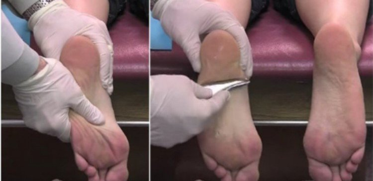 doctor using stainless steel tool for plantar fasciitis treatment