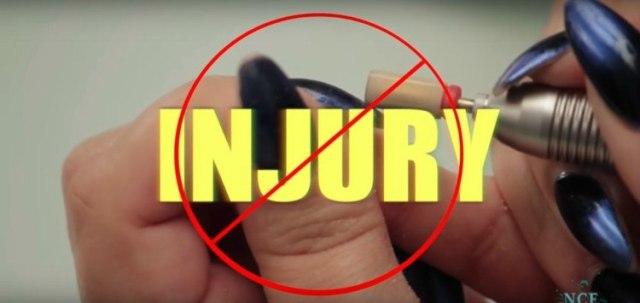 Image of injured fingernails.