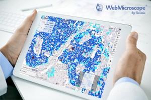webmicroscope_ki67