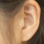 耳鳴りの原因とは?治療法など