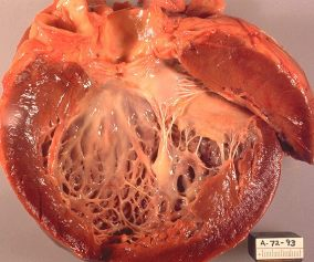 Idiopathic_cardiomyopathy,_gross_pathology_20G0018_lores