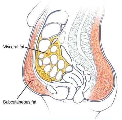visceral belly fat