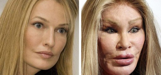 10 Hollywood Celebrities whose plastic surgery caused them a lifetime of embarrassment