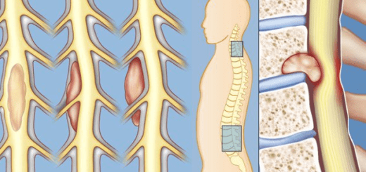 A comprehensive guide to spinal cord tumors and everything you want to know about it!