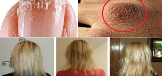 Rely on these nutrients to avoid dry skin, weak nails and unhealthy hair