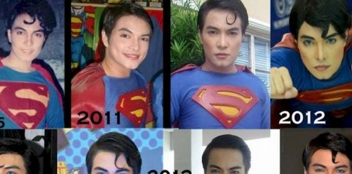 This man went through 23 surgeries to look like Superman and this happened!!