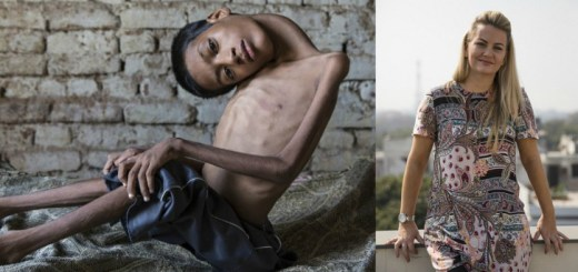 This boy was suffering from a rare disease, Read what this woman did