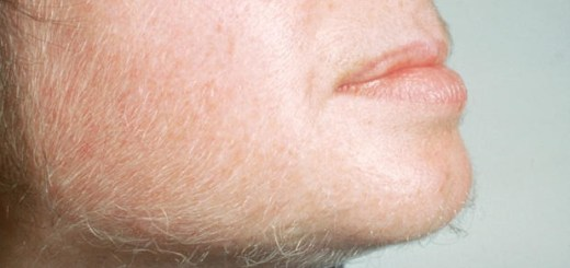 What your unusual facial hair growth could be telling you?