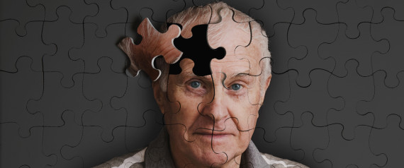 cure-for-alzheimers