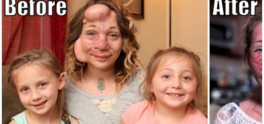 Woman who had balloons placed under Her Skin Undergoes Surgery And The Results Are Amazing.