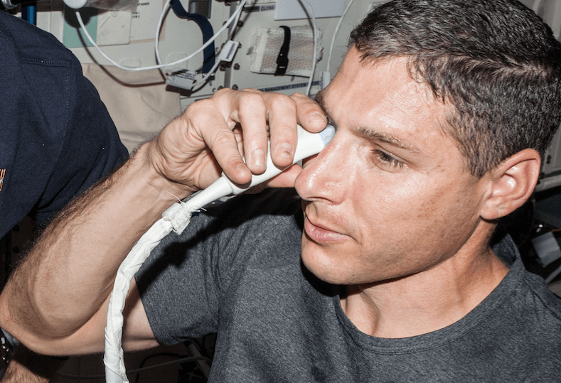 Can NASA Stop Vision Loss In Space With This New Theory?