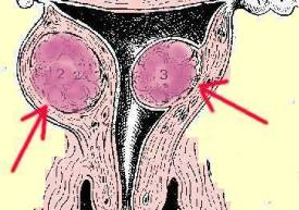 Uterine Fibroids Ovarie Hysterectomy