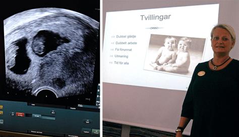Ultraljudet avslöjar en tvillinggraviditet. Kursdags med Margareta Ölwe.