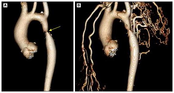 ct_coarctation_of_the_aorta