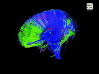 brain_feature (1)