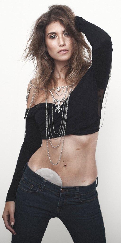 Uncover Ostomy Jessica Grossman Portrait 1