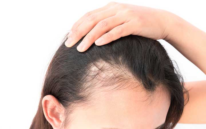 Image result for hair loss is caused by nutritional deficiencies