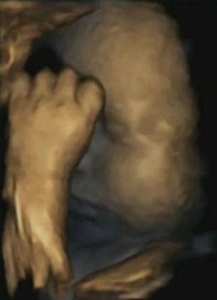 feto si tocca volto